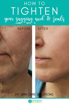 Relistase is an active peptide for mature skin that leads to firmer and tightened complexions. Say goodbye to jowls and loose, sagging skin. Click through to shop! #skincare | naturalorganicskincare.com