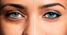 Quer remover as manchas em baixo dos olhos? Bicarbonato é a solução!