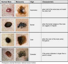 Another good chart, shows normal moles and abnormal.