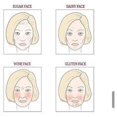 1000+ images about Acne Cure Estroblock on Pinterest | Ps