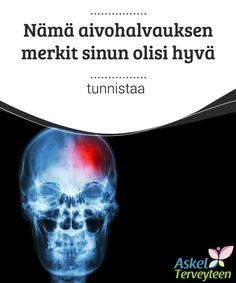Nämä aivohalvauksen merkit sinun olisi hyvä tunnistaa  #Aivohalvaukset liittyvät korkeaan verenpaineeseen, liikkumattomaan #elämäntapaan ja elimistön liian suureen vapaiden radikaalien määrään. Halvausriski on suurempi myös silloin, jos polttaa tupakkaa, juo liikaa alkoholia ja stressaa kovasti. #mielenkiintoista-tietoa