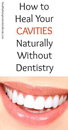 to Heal Your Cavities Without Dentistry the natral way to heal your body Dental Health, Oral Health, Dental Care, Health And Wellness, Health Care, Dental Hygiene, Remedies For Tooth Ache, Receding Gums, Dental Problems