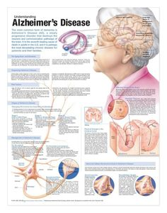 Understanding Alzheimer's Disease anatomy poster discusses the aging brain, dementia and methods of diagnosing AD for patient caregiver education. Neurology for doctors and nurses. November is Alzheimer's Awareness month. Alzheimer Care, Dementia Care, Alzheimer's And Dementia, Medical Posters, Alzheimers Awareness, Alzheimers Quotes, Elderly Care, Medical Information, Anatomy And Physiology