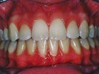 Biobloc orthodontics