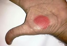Chest congestion ,asthma, breathlessnes apply on the Palm red colour