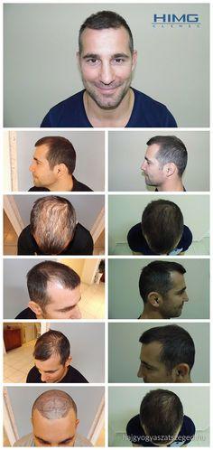 Ritter Árpád - 3500 hajszál beültetése - HIMG Klinika  Több, mint 3500 hajszál átültetése egy nap alatt. Ez a kép a szenzációs hajbeültetési eredményt mutatja, amit a HIMG Klinika végzett.  http://hajgyogyaszatszeged.hu/