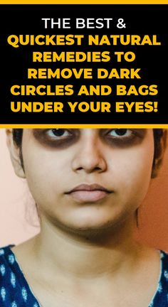 The Best & Quickest Natural Remedies to Remove Dark Circles and Bags Under Your Eyes! Natural Teething Remedies, Natural Cold Remedies, Herbal Remedies, Health And Wellness, Health Tips, Health Care, Anti Aging, Garlic Health Benefits, Receding Gums