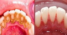 How to Remove Dental Plaque 5 Minutes Naturally Without Going To The Dentist Nigella Sativa, Tartar Removal, Plaque Removal, Natural Teeth Whitening, Whitening Kit, Dental Floss, Oral Hygiene, Oral Health, Recipes