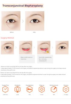 [Eye surgery - Transconjuctival Blepharoplasty] plastic surgery in korea, fat reposition on lower eyelid surgery in korea, fat removal on lower eyelid surgery in korea, eye surgery in korea, double eyelid surgery in korea, recovery time, beauty