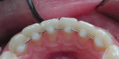 Types of Retainers | another type of retainer commonly used is the lingual bonded retainer ...