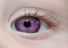 Alexandria's Genesis, a.k.a violet eyes (a genetic mutation).When someone is born with Alexandria's Genesis, their eyes are blue or gray at birth. After six months, the eyes begin to change from their original color to purple, and this process lasts six months. During puberty, the color deepens to dark purple, a deep purple, a royal purple, or a violet-blue color and remains that way. It does not affect the person's eyesight.Those who have this mutation will never grow any