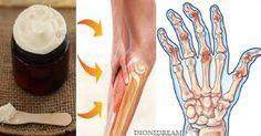 La crema di magnesio viene assorbita meglio ed apporta più benefici per artrite, cervicale, insonnia, dolori muscolari, mal di testa. Ecco la ricetta