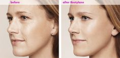 Restylane is used to treat moderate to severe facial wrinkles and folds. For #Restylane in Santa Monica, Pasadena, Torrance, Encino, Valencia, and Los Angeles, call Eyesthetica today.
