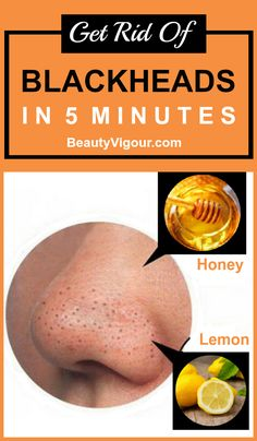 Get rid of blackheads in 5 minutes