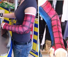 11 Awesomely Decorated Casts Worth a Broken Bone