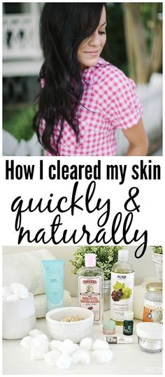 How I healed my skin the natural way! I cleared my skin quickly with this natural routine & I had to share it! Pin if you struggle with breakouts & want them to stop!