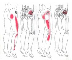 In of the population the sciatic nerve runs through the piriformis muscle rather than beneath it. When the muscle shortens or spasms due Sciatic Nerve, Nerve Pain, Hip Pain, Back Pain, Pnf Stretching, Referred Pain, Muscle Knots, Psoas Release, Piriformis Muscle