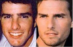 Tom Cruise's rhinoplasty