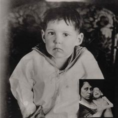 OH, MY GOODNESS!!  Before Dr. Banting's discovery of insulin, many diabetic patients were put on the Allen starvation diet. 500-600 cal per day, consisting of protein & vegetables, no carbs. Many would die of starvation while waiting for a cure. This is a photo of 3-year-old Leonard Thompson, while on the starvation diet (inset), & several weeks after receiving insulin in 1922.