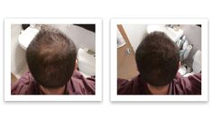 Widening part line? here is one easy solution Fuller Hair, Thinning Hair, Fashion Design, Fashion Tips, Fashion Trends, Hair Loss, Hairstyles, Watch, Easy