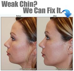#ChinImplant This 30 year old woman residing in Brooklyn, New York was dissatisfied with the appearance of her chin. A medium implant was placed. The frontal view reveals an attractive improvement in the shape of her face. The profile shows improved jaw line definition, with tightening of the neck skin. Surgery takes around 30 minutes, and there is little downtime.
