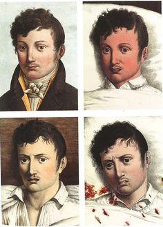 ¿Sabrías unir estas ilustraciones de estilo vintage con la enfermedad que representan?   VICE España