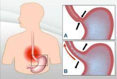 7 rimedi naturali per trattare l'acidità di stomaco e il reflusso - Vivere più sani