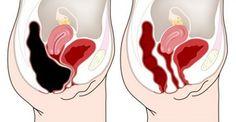 Appuyer sur ce point de votre ventre pour éliminer les toxines du colon