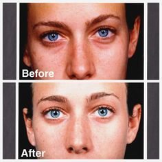 Plastic surgery confessional: Why I had a lower Blepharoplasty, on The Feed: http://blog.travelbeauty.com/lower-lid-under-eye-plastic-surgery-procedure/