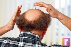 Haartransplantationen im Ausland - bis zu 70% sparen. Männer und Frauen leiden darunter.