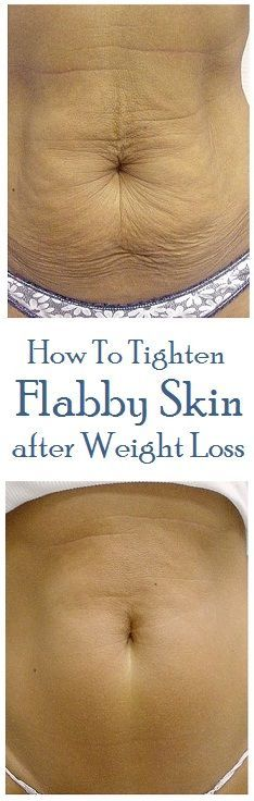 How To Tighten Flabby Skin After Weight Loss | Styles Of Living