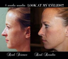 Not only her eyelids, but check out the nice even skin tone, crows feet, wrinkles around nose area, neck creases diminished smooth skin texture, all complimented by the Nerium Facial Skin Glow!!    Let's get you on your way to be that younger looking you :)  Contact me, Ask me about our deep discount! www.melissadon.nerium.com
