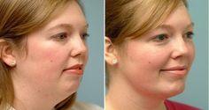 Le double menton est un problème commun chez les hommes et les femmes. Les femmes sont particulièrement affectées comme elles sont plus embarrassées de leur apparence physique. Cependant, le double menton peut être éliminé efficacement