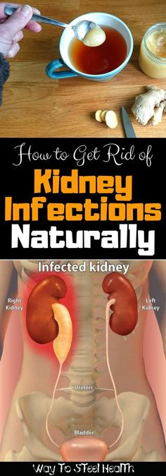 Kidney Cleanse Remedies How to Get Rid of Kidney Infections Naturally - Way to Steel Health Holistic Remedies, Natural Home Remedies, Health Remedies, Herbal Remedies, Homeopathic Remedies, Natural Detox, Natural Health, Natural Glow, Clean Kidneys