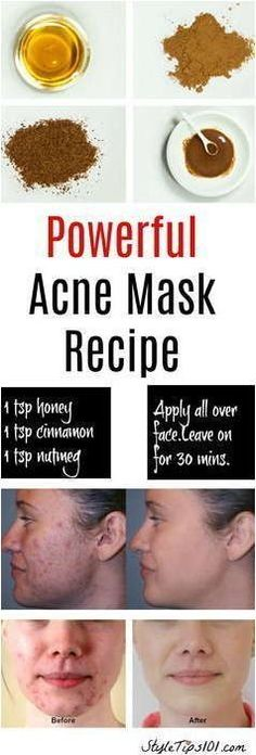Eliminate Your Acne-Remedies - Natural Acne Mask - Free Presentation Reveals 1 Unusual Tip to Eliminate Your Acne Forever and Gain Beautiful Clear Skin In Days - Guaranteed! Homemade Acne Mask, Homemade Skin Care, Homemade Acne Remedies, Diy Acne Mask, Best Acne Mask, Homemade Facials For Acne, Honey Acne Mask, Honey For Acne Scars, Homemade Moisturizer