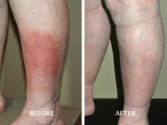 Venous ulcerations. Before and After Treatment. Advanced Vein Therapy @Advanced Vein Therapy Boise, ID