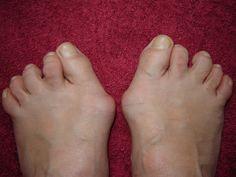 Tenen en hun verhaal - #365tenen: gekromde tenen