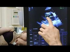 Cardiac echo parasternal long axis view  PLAX - YouTube