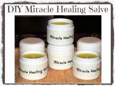 DIY Miracle Healing Salve - so easy to make and it works sooooo well! via www.backdoorsurvival.com