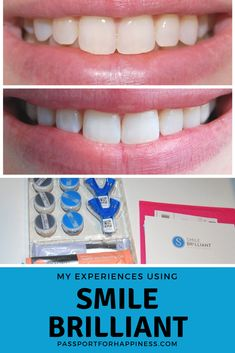 Learn how I whitened my teeth from home with great results from Smile Brilliant! You can get 15% off on your order with code: passportforhappiness15 Or enter the GIVEAWAY to win a kit of your own! www.smilebrilliant.com/g/passportforhappiness These are affiliate links and I may earn a small profit (at no additional cost to you) if you chose to order using my links/codes.