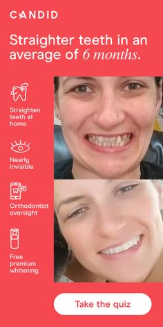 Give yourself straighter, whiter teeth in an average of 6 months with Candid Clear Aligners Get started with 65% off your starter kit. Creme Anti Rides, Creme Anti Age, Beauty Care, Beauty Skin, Beauty Hacks, Health And Beauty Tips, Health Tips, Teeth Care, Skin Care