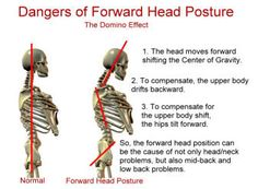 Dangers of Forward Head Posture