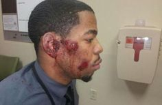 Police In St. Louis County Admit They Beat Up The Wrong Young Black Man - King Noble - Members - Kingnobleblackrulership.com