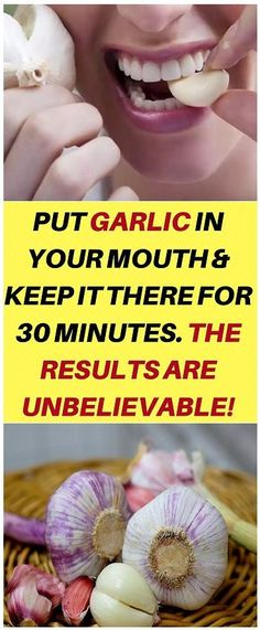 """Put Garlic In Your Mouth And Keep It There For 30 Minutes. The Results Are Unbelievable! Put Garlic In Your Mouth And Keep It There For 30 Minutes. The Results Are Unbelievable! """"Healthy and amazing. Natural Home Remedies, Herbal Remedies, Health Remedies, Cold Remedies, Health And Beauty Tips, Health And Wellness, Health Fitness, Info Board, Healthy Habits"""