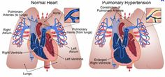 Prostacyclins right heart failure READ MORE AT http://medical-helpful-info.blogspot.com/2012/10/mechanism-right-sided-heart-failure.html