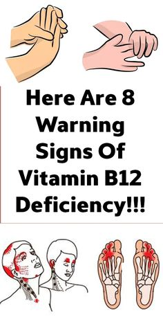 Here Are 8 Warning Signs Of Vitamin Deficiency - Your Health Here Keeping Healthy, Healthy Tips, Healthy Skin, Healthy Food, Healthy Habits, Wellness Tips, Health And Wellness, B12 Deficiency Symptoms, Vitamine B12
