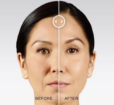JUVÉDERM VOLUMA® XC is the first and only FDA-approved injectable gel to instantly add volume to your cheek area to correct age-related volume loss in adults over the age of 21.: