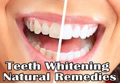 Natural Teeth Whitening Remedies   Medi Queen