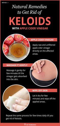 Apple Cider Vinegar Remedies for Keloids