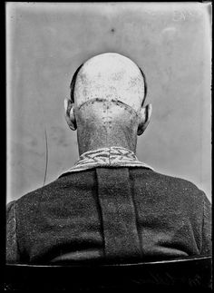 http://dangerousminds.net/comments/beautiful_portraiture_of_the_first_brain_surgery_patients